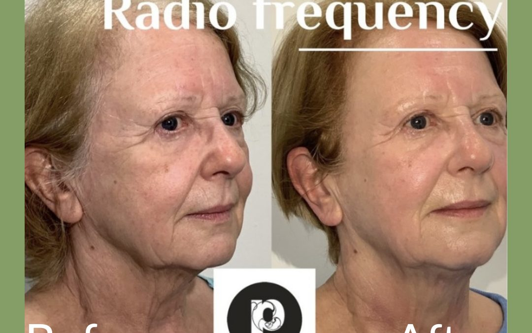 AGEING : Why you should choose Radiofrequency